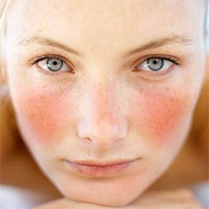 irriteret hud, rosacea